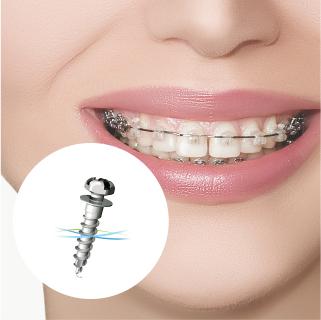 歯科矯正用アンカースクリューの使用